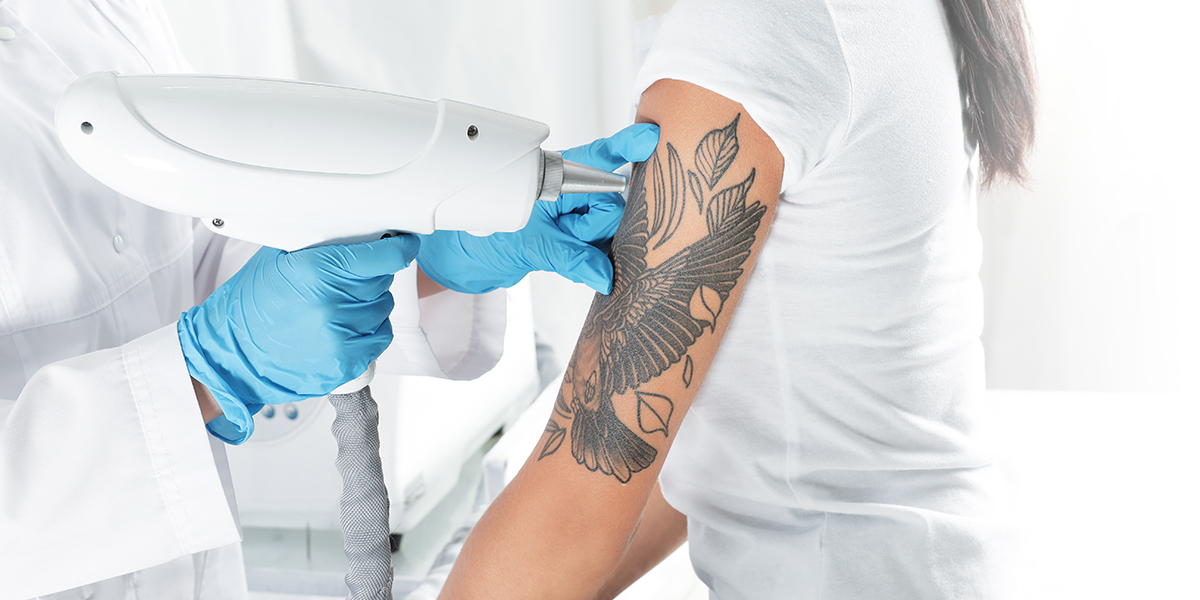 Eternal Beauty Laser Tattoo Removal Services